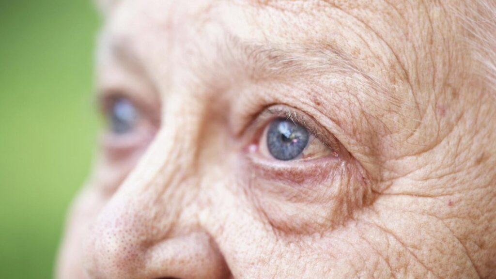 склероз у пенсионеров